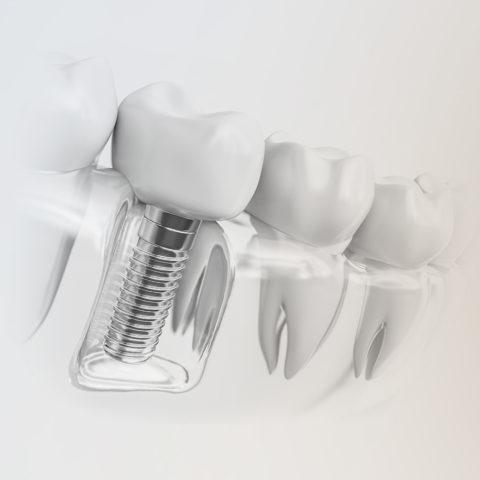 Zahnimplantate Sankt Augustin